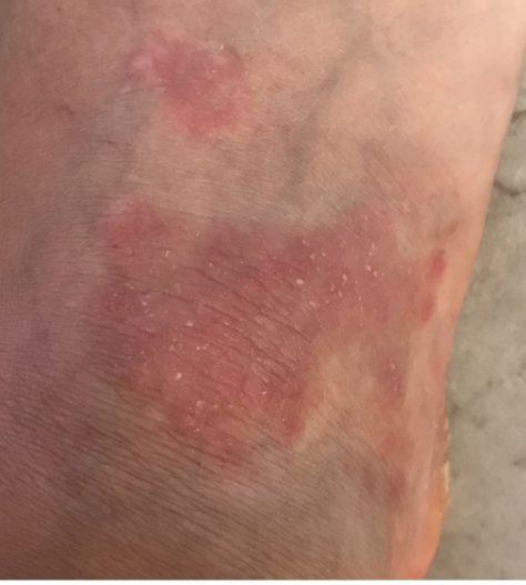 Caros betroffene Fußsohle