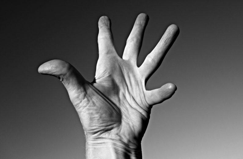 Psoriasis Arthritis: Erkennen und wie damit leben