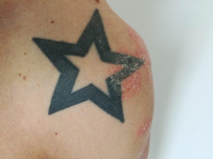 Ein Tattoo kann von Psoriasis überlagert werden
