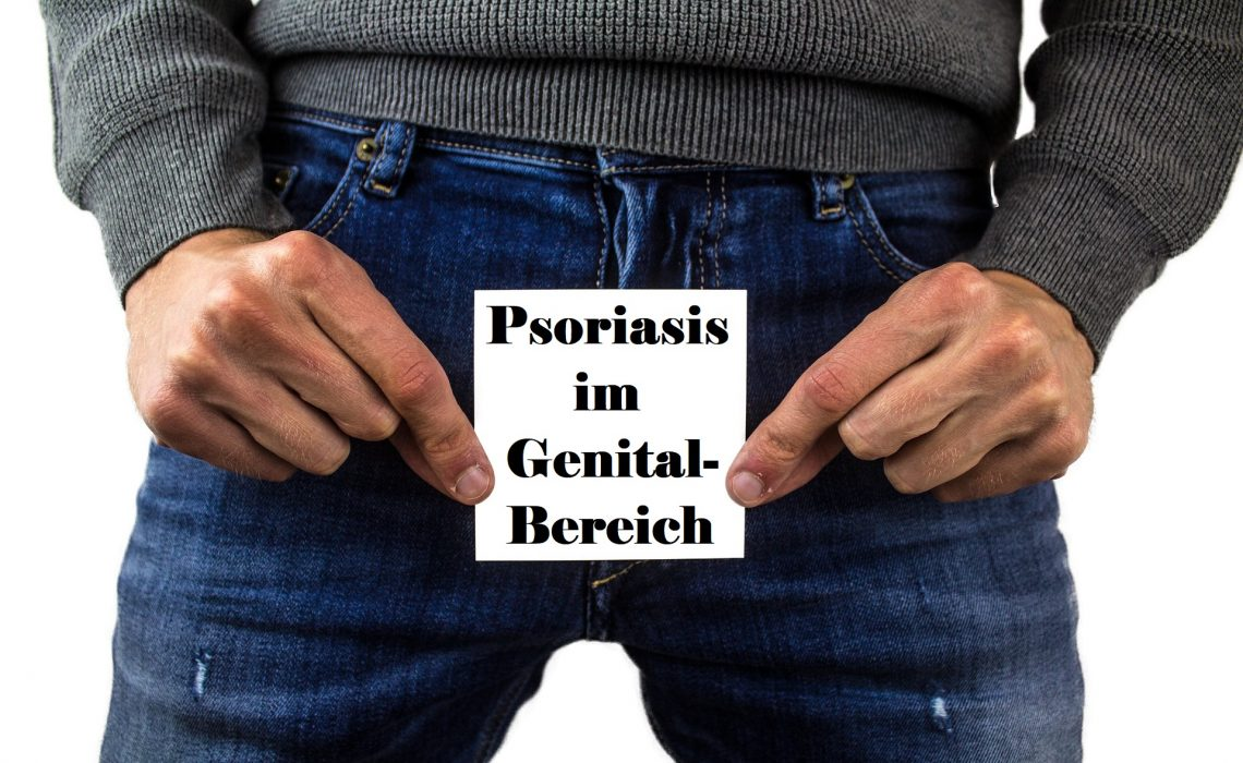 Psoriasis im Genital-Bereich