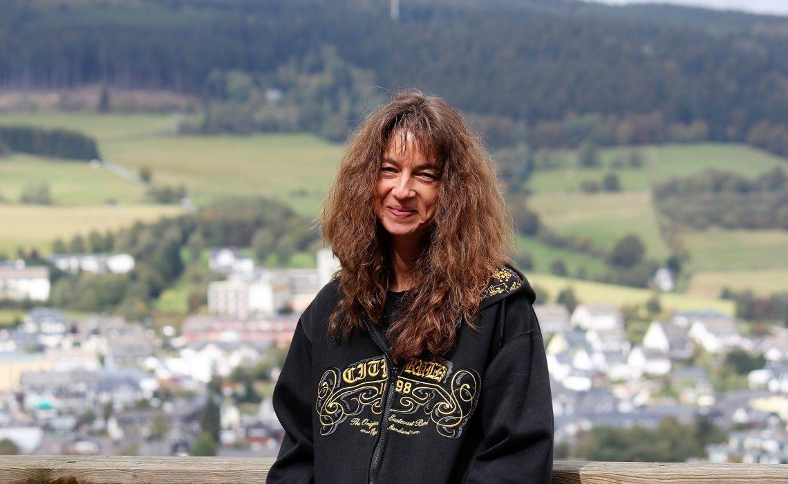 Monika Interview Psoriasis