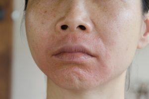Psoriasis im Gesicht