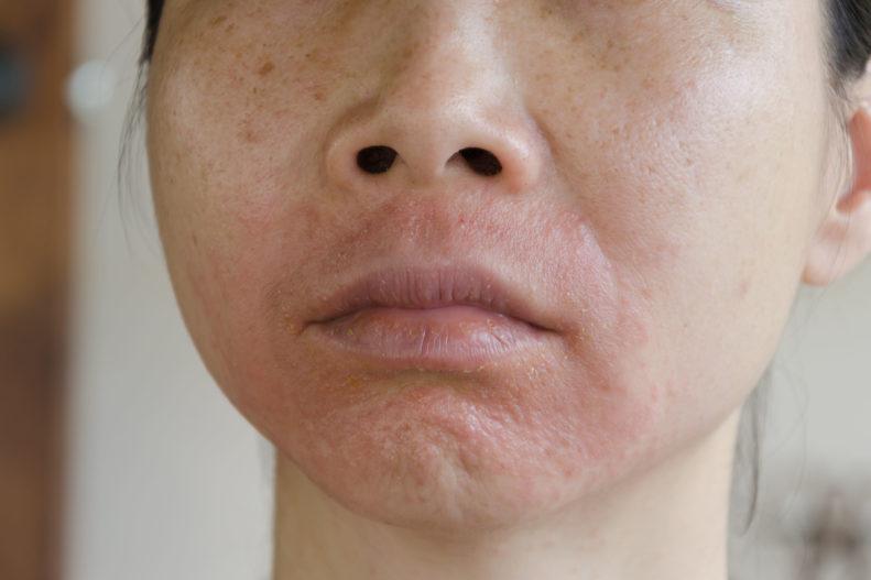 Psoriasis im Gesicht: Schmerzhaft und besonders belastend