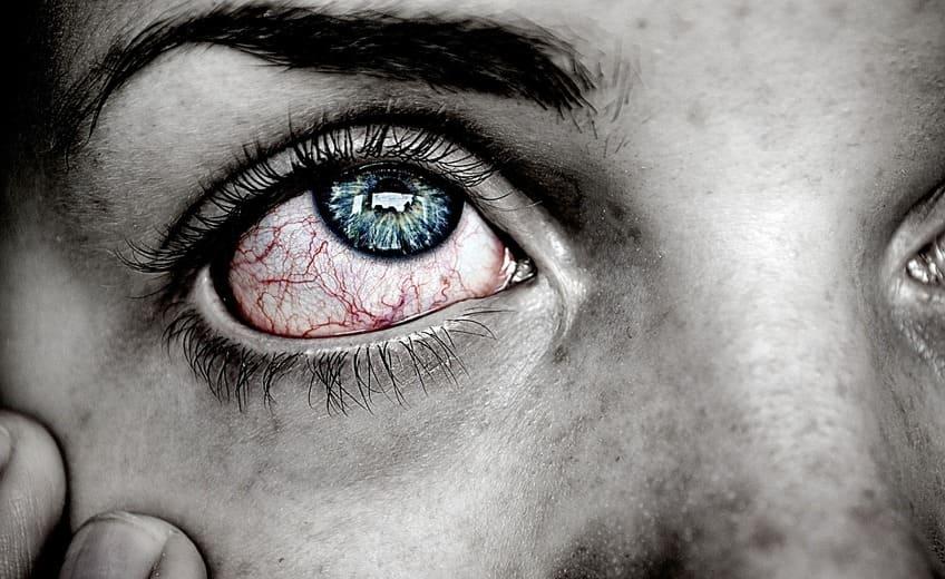 Psoriasis in den Augen: Worauf musst du achten?