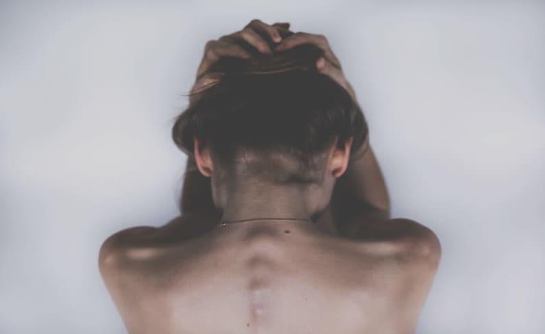 Psoriasis Kopfhaut Behandlung: Was tun bei Psoriasis auf der Kopfhaut?