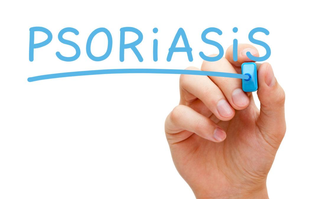 Was ist Psoriasis / Schuppenflechte? – Grundwissen
