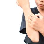 Kind mit Psoriasis guttata, Schuppenflechte