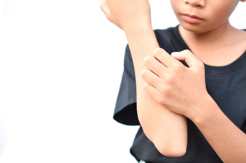 Psoriasis guttata – Sonderform der Schuppenflechte bei Kindern