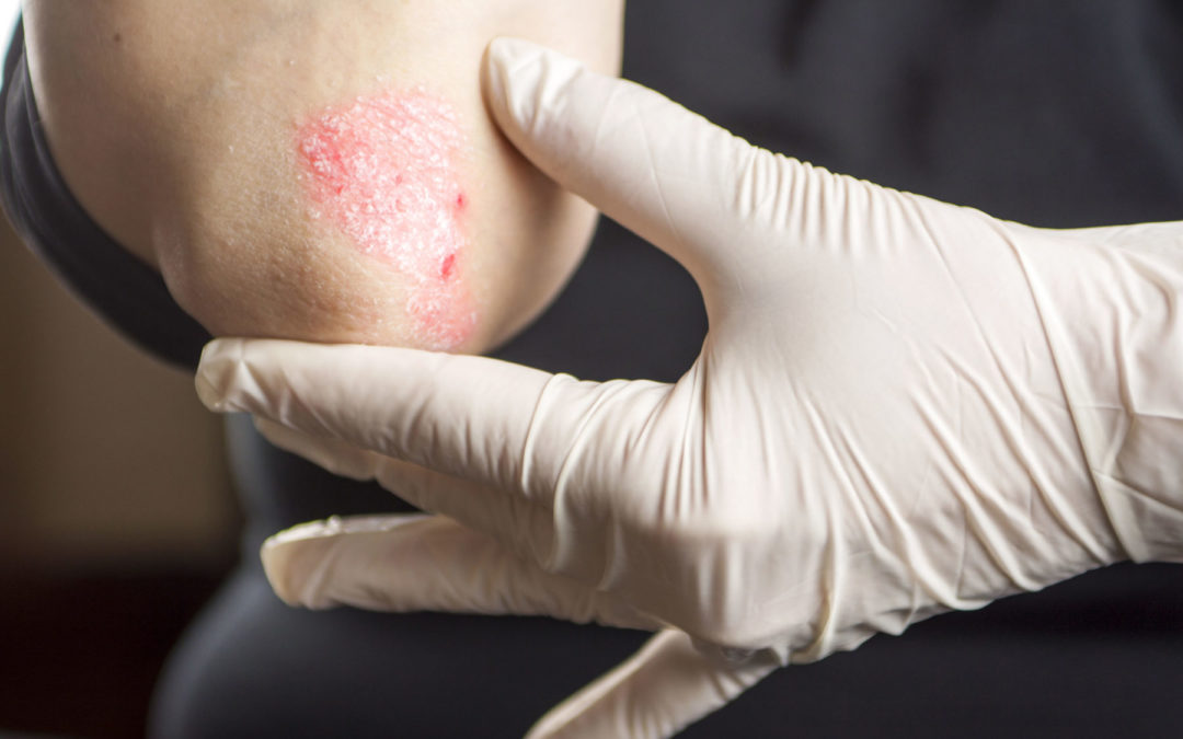 Dithranol – Schuppenflechte Behandlung ohne Langzeit-Nebenwirkungen