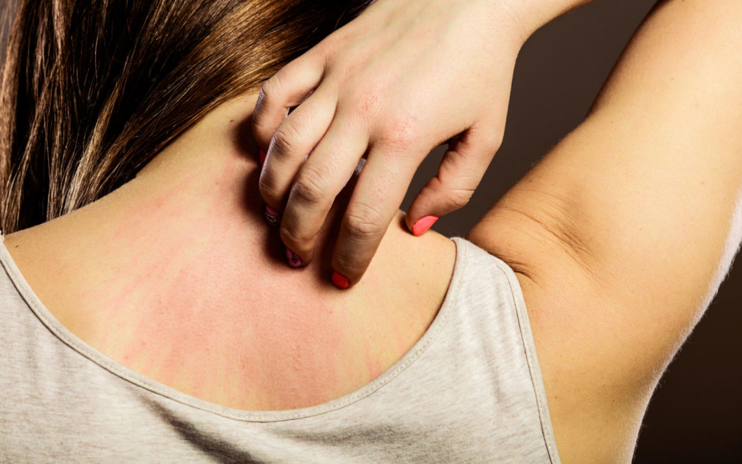Histaminintoleranz als Ursache vielfältiger Hautprobleme