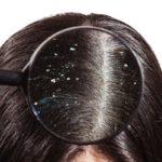 Kopfhautpeeling: Pflege und Reinigung für die Kopfhaut – auch bei Schuppenflechte?