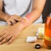 Apfelessig bei Hautproblemen