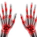 Beeinflusst Schuppenflechte Rheuma? Zusammenhänge und Wissenswertes