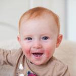 Neurodermitis Bilder und Neurodermitis Erscheinungsbild bei Kindern und Erwachsenen