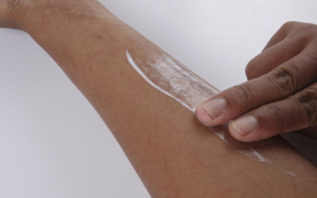 Neurodermitis Creme – Grundlage der Basistherapie