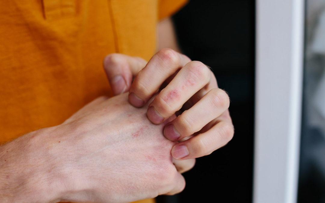 Neurodermitis an der Hand