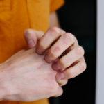 Neurodermitis an der Hand: Ursachen und Therapie