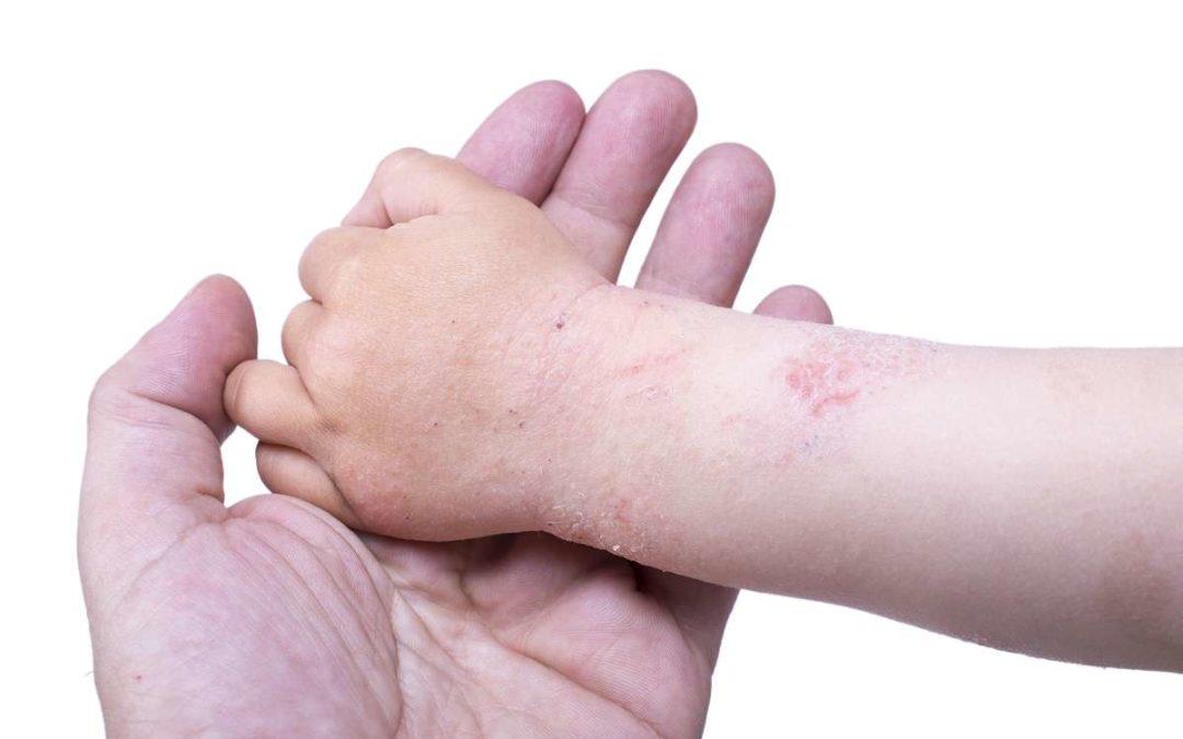Neurodermitis Kind Kleinkind