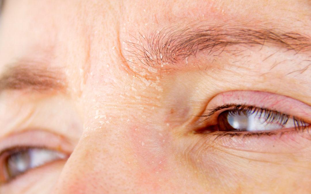 Neurodermitis am Auge