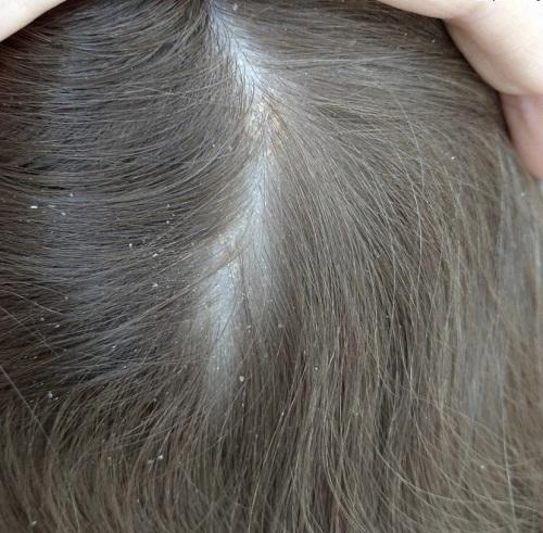 Bild von der Kopfhaut von Testerin Angelika vor dem Test