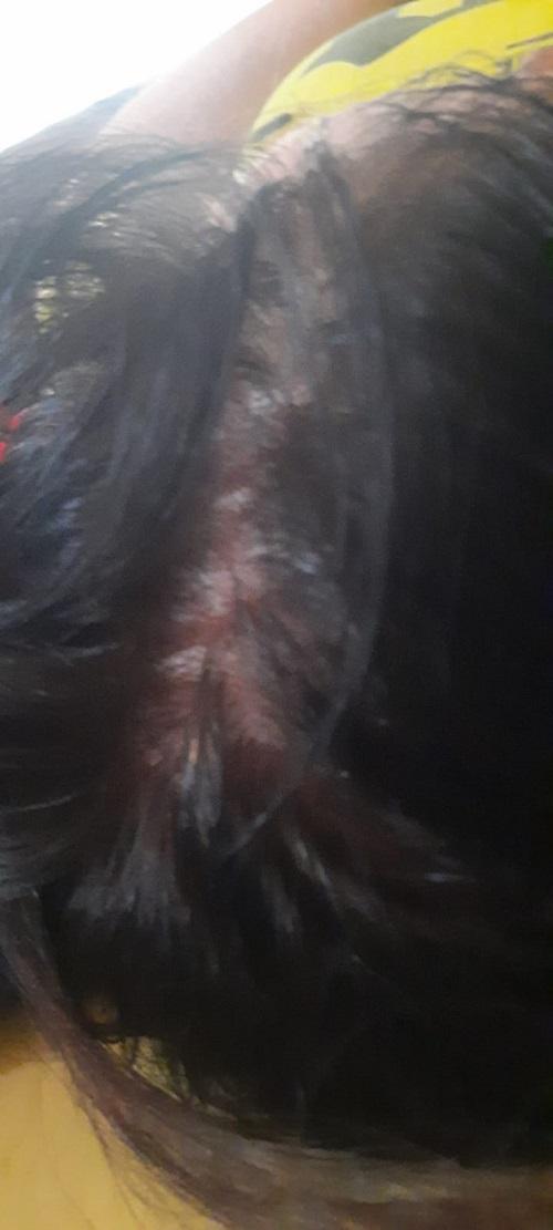 Bild mit Sabines Kopfhaut vor dem Test